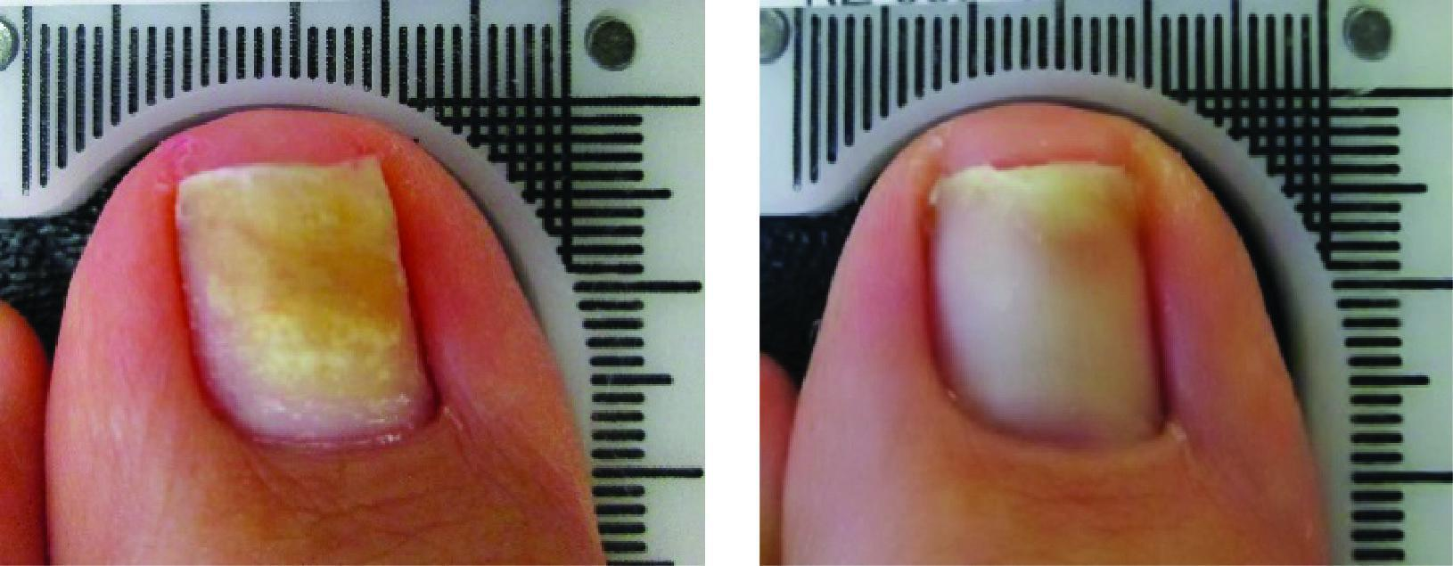 Before and After Laser Therapy For Toenail Fungus Patient 1