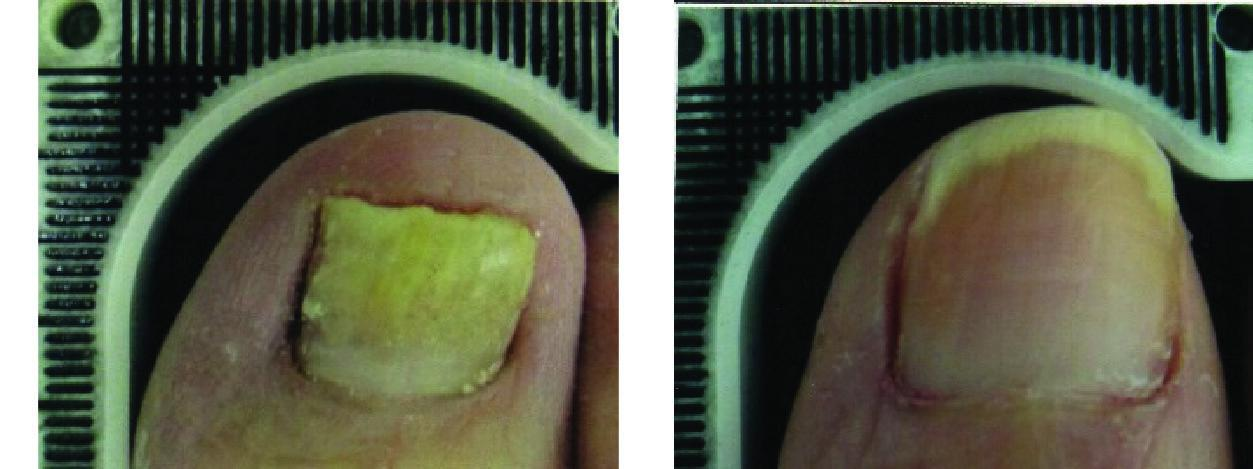 Before and After Laser Therapy For Toenail Fungus Patient 3