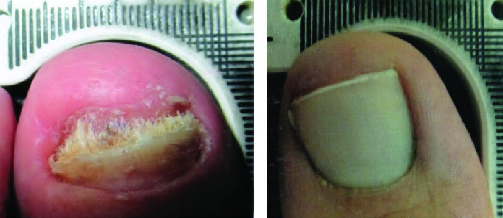 Before and After Laser Therapy For Toenail Fungus Patient 4