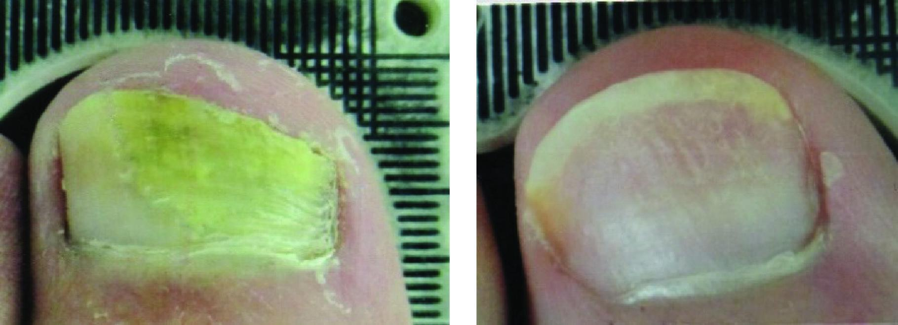 Before and After Laser Therapy For Toenail Fungus Patient 5