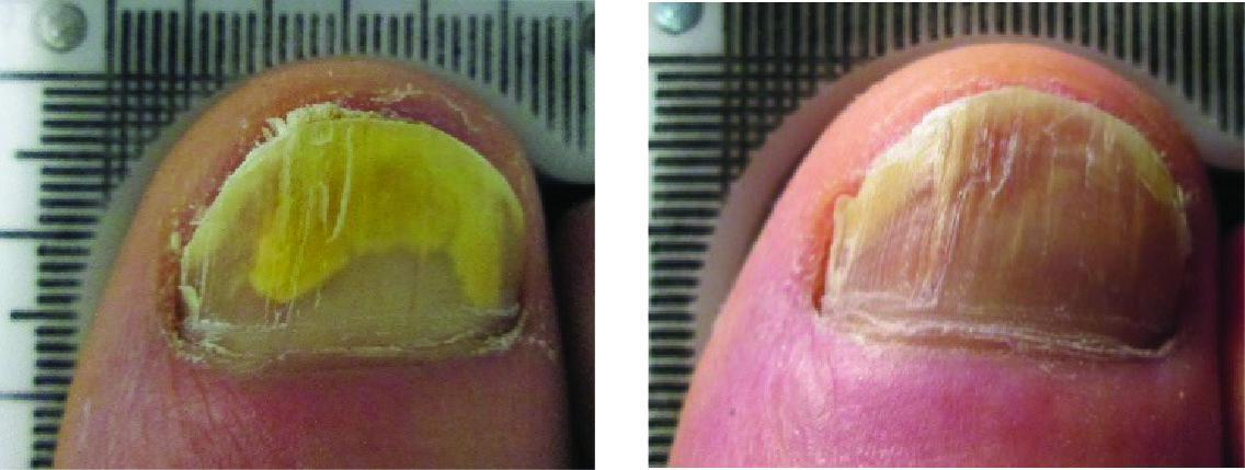 Before and After Laser Therapy For Toenail Fungus Patient 6