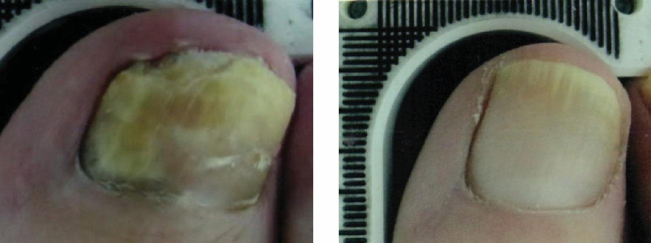 Before and After Laser Therapy For Toenail Fungus Patient 2