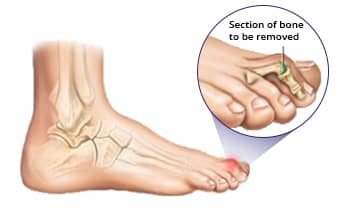 What Is Hammer Toe Surgery?